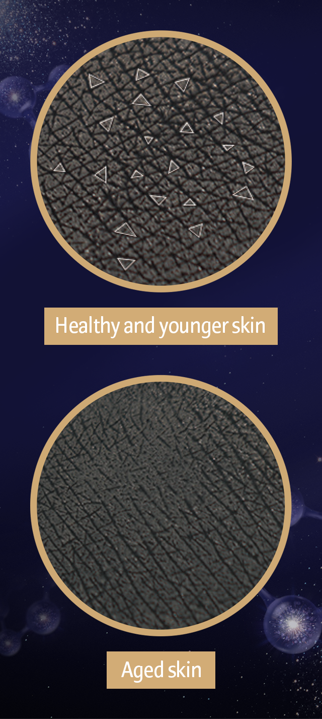 Healthy and younger skin, Aged skin image