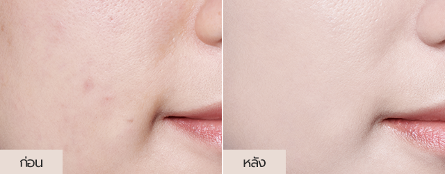 Neo Cushion matte Product detail image